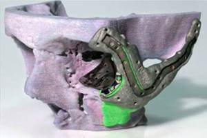 3D printed model of Stephens skull (purple) with 3D printed titanium implanted attached (grey)