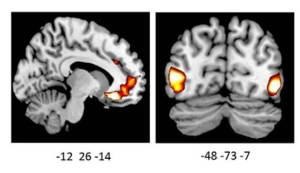 The influence of ADRA2b showed up in neural measures of emotionally enhanced vividness through brain scans (modified from source)